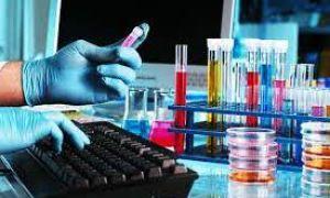 Что такое полимеразная цепная реакция, ПЦР анализ