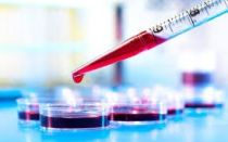 Биохимический анализ крови, расшифровка, норма