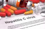 Симптомы, диагностика, лечение вирусного гепатита C