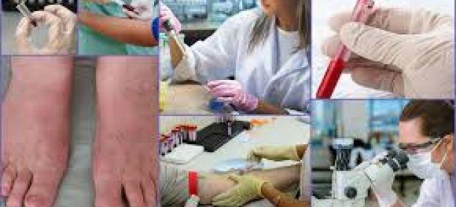 Анализ крови на АЦЦП при ревматоидном артрите