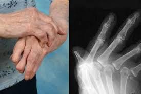 Ruki bol'nogo revmatoidnym artritom