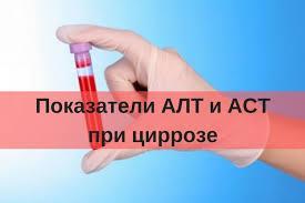 analizy-alt-i-ast-pri-cirroze