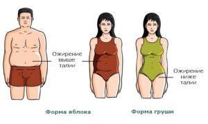 klassifikaciya-ozhireniya