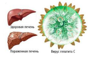 Pechen' i virus gepatita C